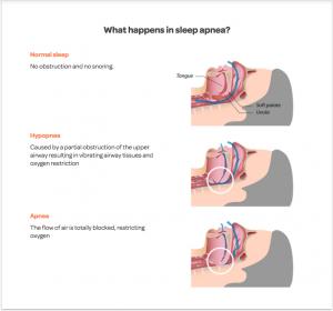 sleep apnea treatments
